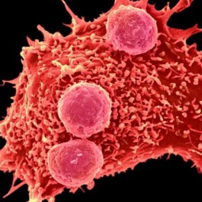 Kansere genetik tedavi: İnsan deneyleri başlatıldı