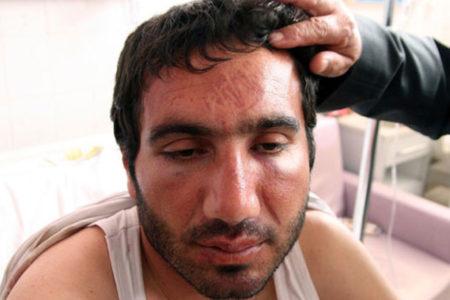 Postal izine ve kırılan kemiklere rağmen tutuklama talebi reddedildi