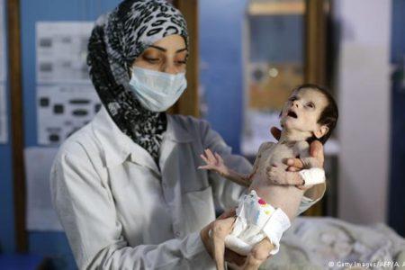 BM: Suriye'de siviller açlıktan öldürülüyor