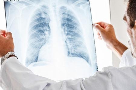 Akciğer kanserinden ölümlerde erkekler ilk sırada yer alıyor