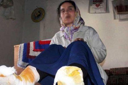 Karısını kaynar suyla yaktı cezası: 1 ay uzaklaştırma